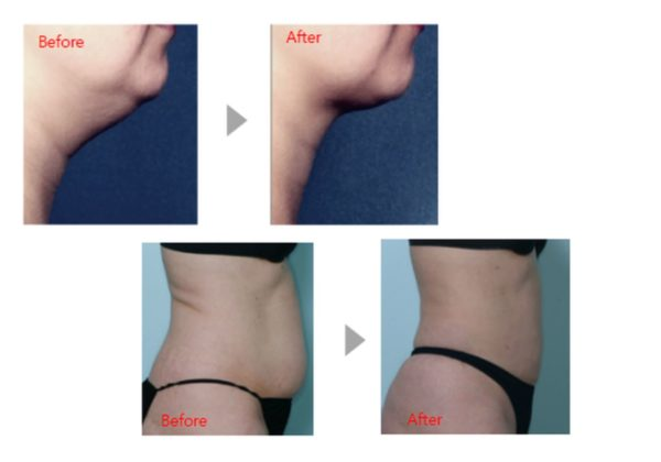 kabelline fat injection