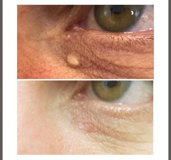 skin tag plasma removal
